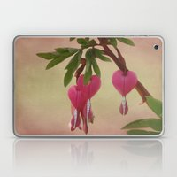 The Bleeding Hearts Laptop & iPad Skin