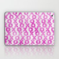 Xoxo (hot Pink) Laptop & iPad Skin