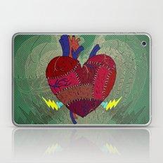 Heartenstein Laptop & iPad Skin