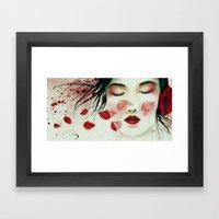 Head Wounds Framed Art Print