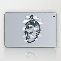 lawnmohawk Laptop & iPad Skin