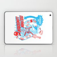 A Juicebox For Dolphin L… Laptop & iPad Skin