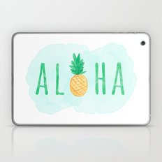 Pineapple Aloha Hawaiian Quote Laptop & iPad Skin