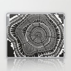 Growth Rings – 65 Years – Black Laptop & iPad Skin