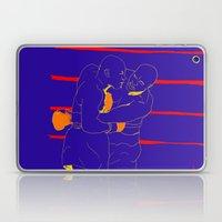 Tyson Laptop & iPad Skin