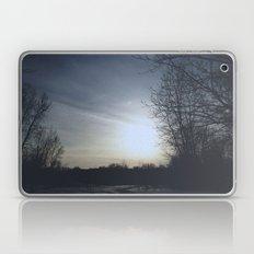 set Laptop & iPad Skin