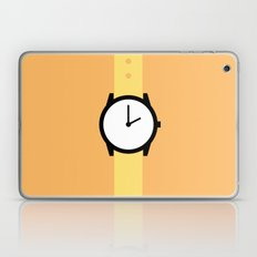 #87 Watch Laptop & iPad Skin