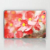 Scarlet Begonias Laptop & iPad Skin
