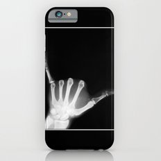 Hang Loose X-Ray Slim Case iPhone 6s