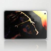The Hero Lachlan Deserves Laptop & iPad Skin