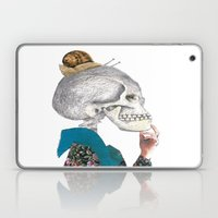 What Was The Question? Laptop & iPad Skin