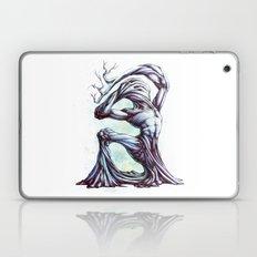 TreeMan Laptop & iPad Skin
