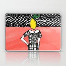 Lemon Head Laptop & iPad Skin