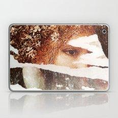 A another Regard Laptop & iPad Skin