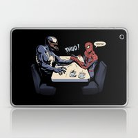 OK, Let's settle this! Laptop & iPad Skin