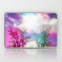 Flavored Skies  Laptop & iPad Skin