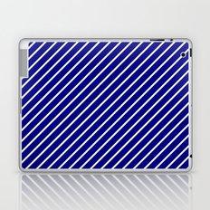 Diagonal Lines (White/Navy Blue) Laptop & iPad Skin