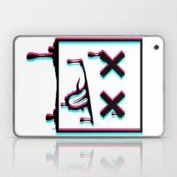 Dead Pixel CMK Laptop & iPad Skin