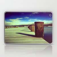 What's Up Dock?  Laptop & iPad Skin