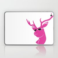 CAUGHT in the LIMELIGHT PINK Laptop & iPad Skin