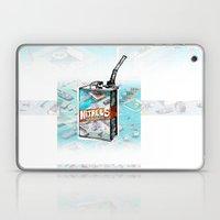 NITROUS OXIDE Laptop & iPad Skin