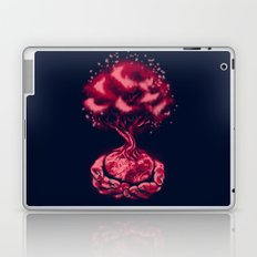 In Our Hands Laptop & iPad Skin