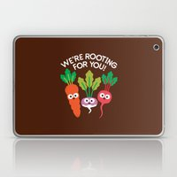 Motivegetable Speakers Laptop & iPad Skin