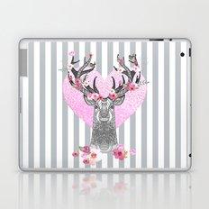 YOUNG LOVE Laptop & iPad Skin