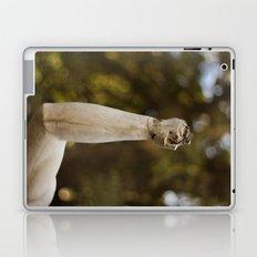 Broken hand Laptop & iPad Skin