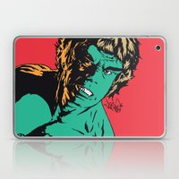 See Me Angry Laptop & iPad Skin