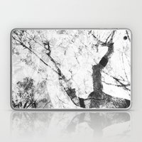 Between the Trees Laptop & iPad Skin