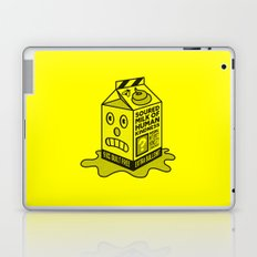 Another Election... Laptop & iPad Skin