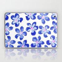 Posey Power - Ink Blue M… Laptop & iPad Skin