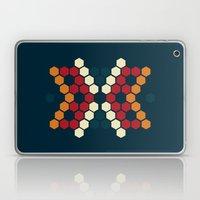 The Skin We Make Laptop & iPad Skin