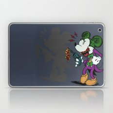 Why So Serious?  Laptop & iPad Skin