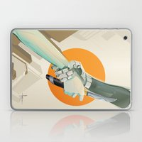 SERVITUDE Laptop & iPad Skin