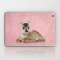 Portrait Of A Small Fawn… Laptop & iPad Skin