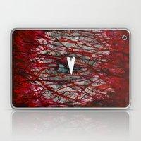 Heart Burn Laptop & iPad Skin