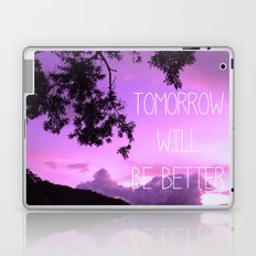 Tomorrow will be better! Laptop & iPad Skin