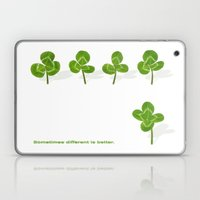Sometimes different is better. Laptop & iPad Skin