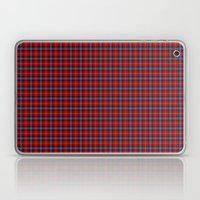 Aberdeen University Tartan Laptop & iPad Skin
