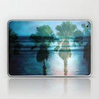 Tropical Dreams Laptop & iPad Skin