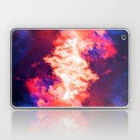 SleepyHead ~ Analog Zine Laptop & iPad Skin
