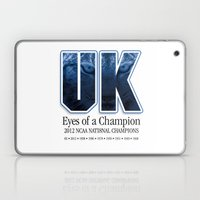 Eyes of a Champion Laptop & iPad Skin