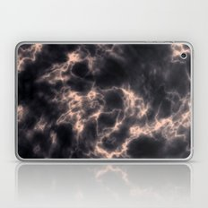 RoAndCo Laptop & iPad Skin