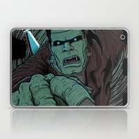 It's Alive Laptop & iPad Skin