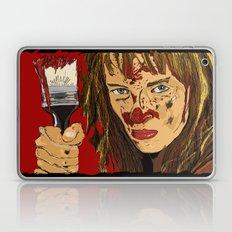 Bxxxxxx Kxxxx Laptop & iPad Skin