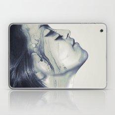 Treat Laptop & iPad Skin