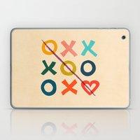 Xoxo Love Laptop & iPad Skin