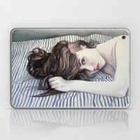 Striped Sheets Laptop & iPad Skin